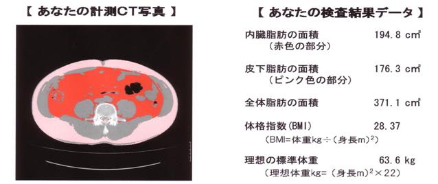 CT画像解析による内臓脂肪分布計測