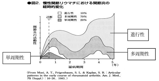 慢性関節リウマチにおける関節炎の経時的変化
