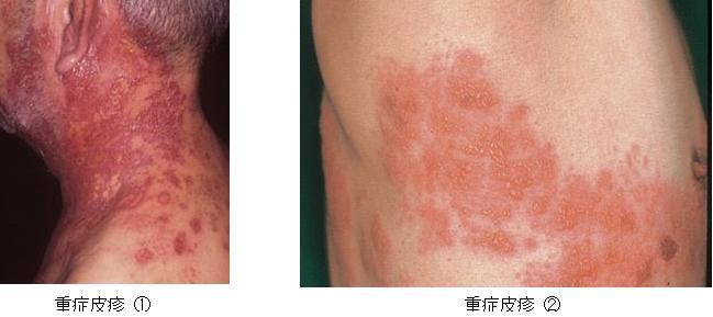 帯状疱疹症状