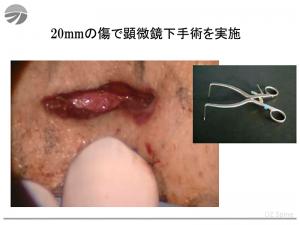 20mmの傷で顕微鏡下手術を実施